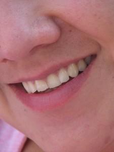 Tips para blanquear los dientes rapido