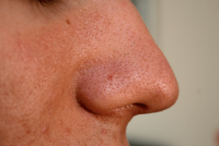 Grano dentro de la nariz