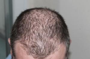 Hormonas para el crecimiento del pelo