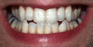 que es una caries dental