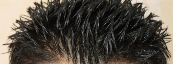 picazon en el cuero cabelludo