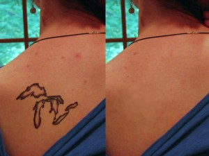 Como borrar un tatuaje